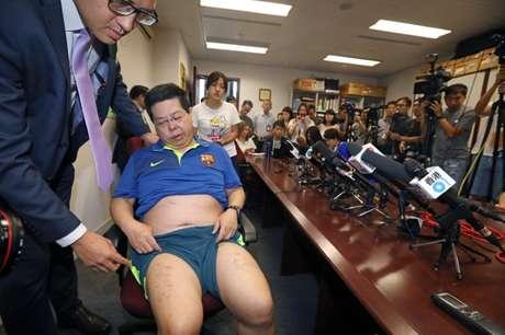 Membro do Partido Democrático de Hong Kong, Howard Lam, mostra lesões 11/08/2017 Apple Daily via REUTERS