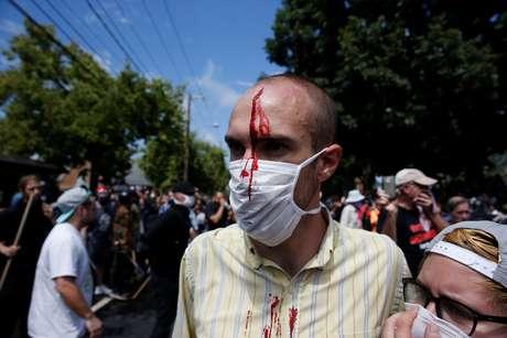 Homem ferido após confronto entre manifestantes e membros da extrema direita