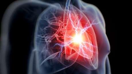 Ataques cardíacos ocorrem por causa da interrupção do fluxo sanguíneo para o coração