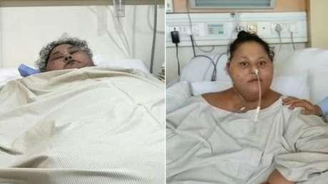 Egípcia que chegou a pesar meia tonelada morre em Abu Dhabi