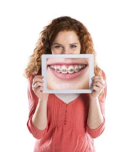 Una  pasta de dientes con un contenido de flúor mayor puede reducir la aparición de marcas blancas