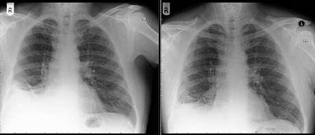 Raio-X de pulmão