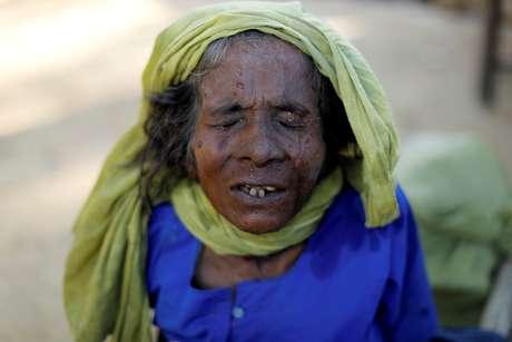 Refugiada rohingya durante checagem médica em Palang Khali, Bangladesh REUTERS/Jorge Silva