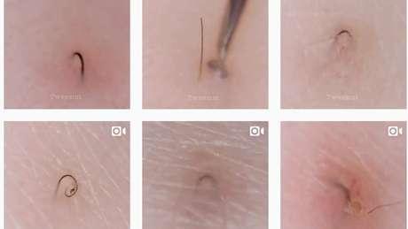 Vídeos com remoção de pelos