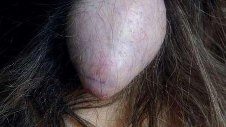 Cisto no couro cabeludo