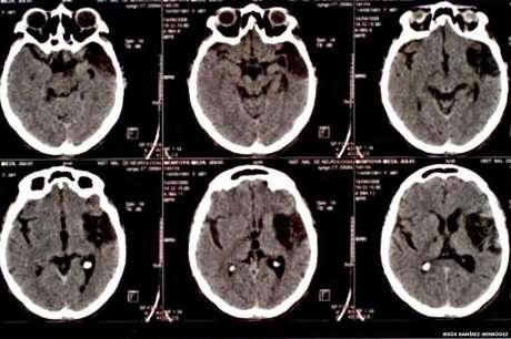 A Síndrome de Cotard pode estar ligada a danos no cérebro causados por traumas físicos (Foto: Jesus Bermudez-Ramirez)