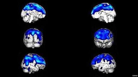 Problemas de metabolismo e danos no cérebro em áreas responsáveis por controlar o raciocínio podem causar o problema (Foto: Cortex)