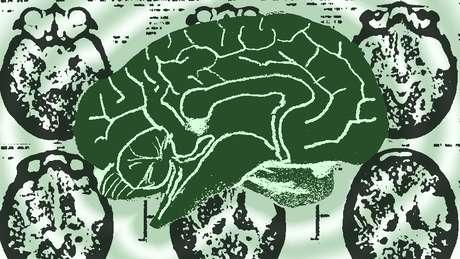 Um grande número de fatores contribui para que a Síndrome de Cotard se desenvolva | Empics
