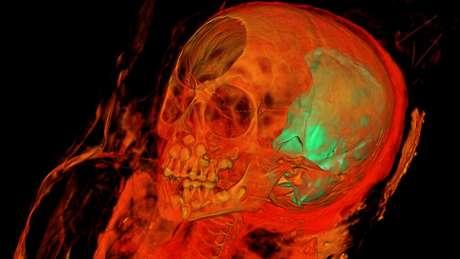 Pesquisadores querem descobrir mais sobre objeto encontrado dentro do crânio da menina   Foto: Northwestern University