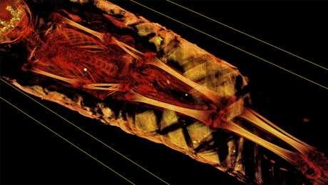Tomografia computadorizada mostra detalhes da múmia, mas pesquisadores querem ir além   Foto: Northwestern University