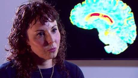 Professora Sarah Tabrizi , do Instituto de Neurologia UCL, liderou os experimentos.
