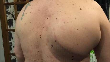 O tumor nas costas de Kevin tinha o tamanho de uma bola de boliche. Foto: Arquivo pessoal Kevin O'Neill.