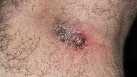 A leishmaniose tegumentar, também chamada de cutânea, é caracterizada por feridas na pele e mucosas | Foto: Harout Tanielian/Science Photo Library