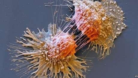Pacientes com Síndrome de Lynch têm risco maior de desenvolver vários tipos de câncer | Foto: SPL