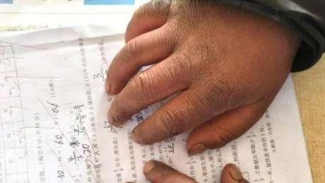 Foto mostra que Wang recebeu nota 99 em um teste, apesar das mãos sujas e inchadas | Foto: The Paper