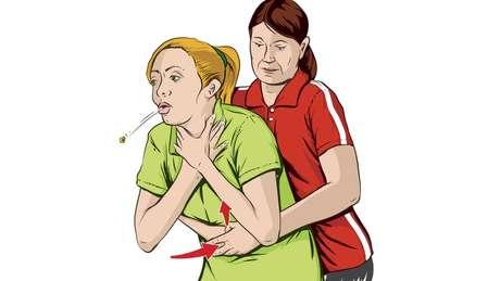 A 'manobra de Heimlich' é quando uma pessoa pressiona sua barriga para formar uma corrente de ar ao contrário que vai expulsar o objeto que obstrui o caminho do oxigênio para o pulmão