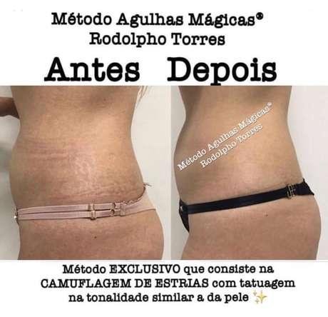 Sucesso Entre Famosas Tatuador Inova Ao Camuflar Estrias