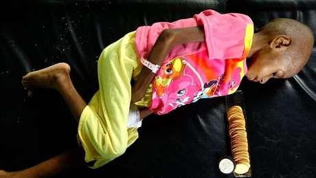 Três filhos de Ofnea Yohanna estão desnutridos; 'Nós comemos quando tem alguma comida, quando não tem, não comemos. Nós não temos um barco agora para pescar', diz