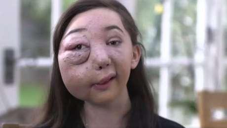 Nikki tem uma malformação arteriovenosa no lado direito do rosto e do crânio e pode ter hemorragias graves a qualquer momento