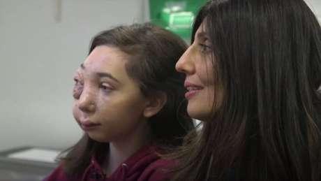 A jovem de 13 anos já passou por 30 cirurgias e centenas de consultas médicas