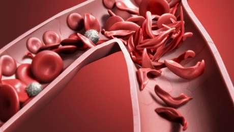 Glóbulos vermelhos falciformes – ou seja, mal formados – causam diversos problemas de saúde