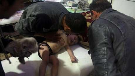 Criança é tratada em hospital em Douma, no leste de Ghouta, na Síria, após suspeita de ataque químico