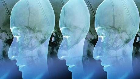 Cientistas estão tentando transformar a forma como o cérebro responde a comida