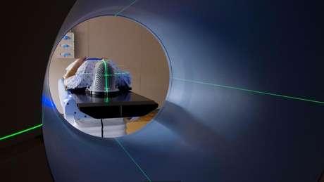 Para implantar eletrodos no cérebro, os cientistas precisam fazer um pequeno buraco no crânio com uma furadeira