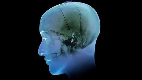 O centro de recompensas do cérebro é mais ativo nas pessoas com vícios (Foto: Science Photo Library)