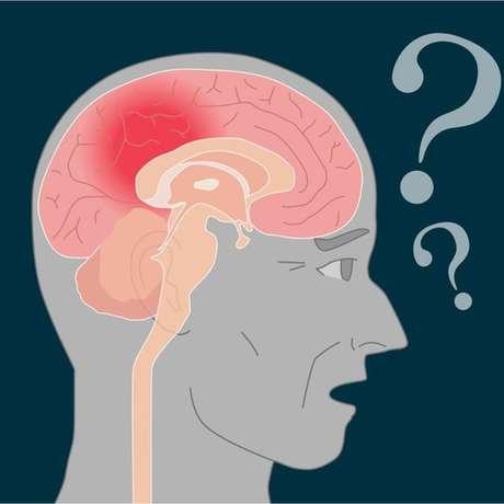 Doença de Alzheimer atinge região do cérebro que fixa as informações novas