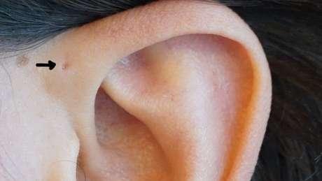 Já reparou se você mesmo, ou pessoas que conhece, têm um buraquinho no topo da cartilagem da orelha?