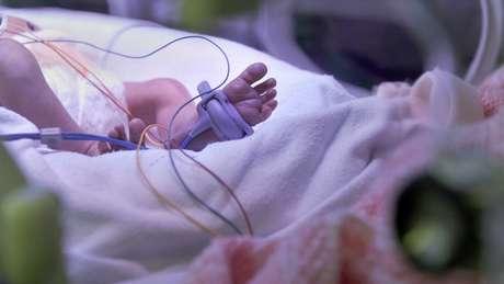 A polícia investiga as mortes de 17 recém-nascidos na unidade neonatal, entre março de 2015 e julho de 2016