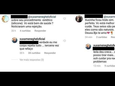 Xuxa Meneghel tranquilizou os fãs no Instagram sobre a cirurgia que foi submetida para trocar as próteses de silicone
