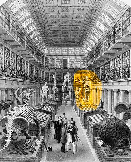 O esqueleto de Byrne ficou exposto por décadas no museu Hunteriano