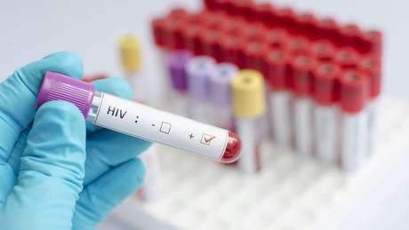 Segundo estudo publicado na revista acadêmica The Lancet, a vacina preventiva para HIV deu 67% de proteção contra o vírus