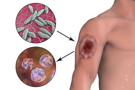 Ilustração mostra uma ferida causada por leishmaniose – em cima, os parasitas que causam a doença e, abaixo, as células humanas infectadas