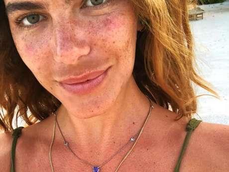 Mariana Goldfarb postou foto sem maquiagem e explicou mancha na área do buço