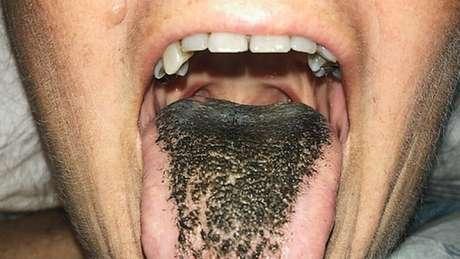 Sintomas da doença são náusea, halitose, distúrbio degustativo e, obviamente, uma aparência pouco atraente da língua | Crédito: The New England Journal of Medicine