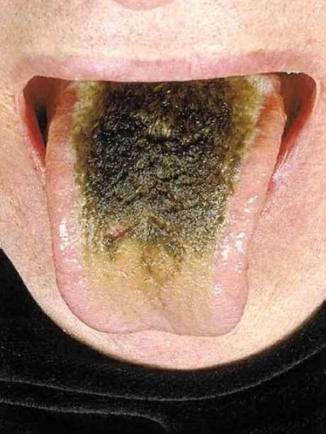 Em 2006, publicação acadêmica publicou caso de fumante que viveu com doença por vários anos | Crédito: The New England Journal of Medicine