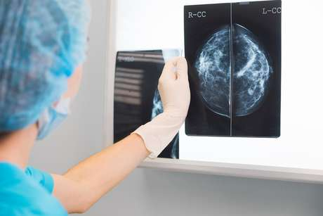 'Fake news' podem atrapalhar o tratamento contra o câncer de mama