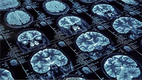 Durante o sono de ondas lentas, o hipocampo e o neocórtex se comunicam para codificar informações na memória de longo prazo