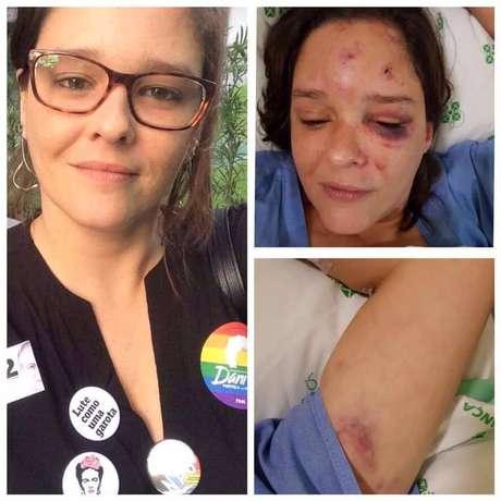 A vítima ficou com hematomas pelo rosto e teve um dos braços quebrados.