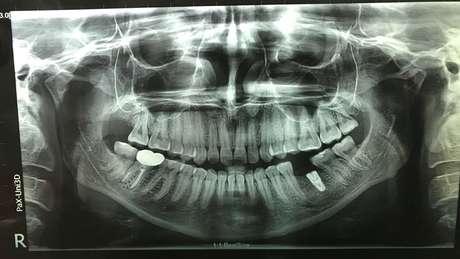 Um raio-X dos dentes de Lizzie Porter