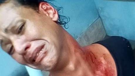 Julyanna Barbosa diz que foi agredida na rua por homens que diziam que 'Bolsonaro tem que ganhar mesmo, pra tirar esses lixos da rua'
