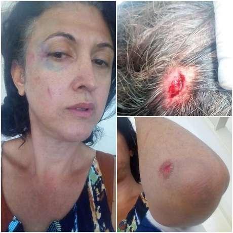 Fotos divulgadas pela trans Angela Lopes mostram os ferimentos