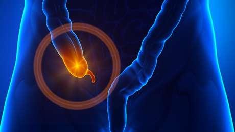 De acordo com a pesquisa, a diminuição do risco de Parkinson só foi observada nos pacientes que retiraram o apêndice bem antes de apresentarem qualquer sintoma da doença