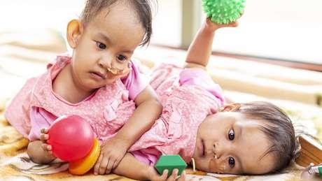 As gêmeas Nima e Dawa nasceram unidas pelo torso