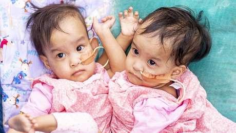 Meninas têm pouco mais de um ano de idade e nasceram no Butão