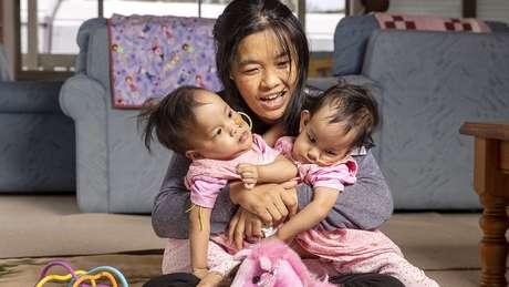 Com ajuda de instituição de caridade, mãe e filhas foram do Butão à Austrália para fazer cirurgia