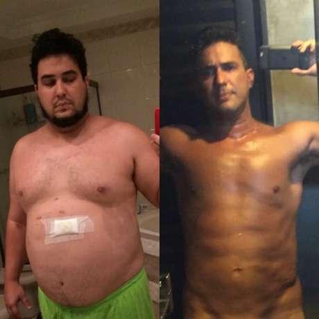 André Marques mostrou o antes e o depois da cirurgia bariátrica